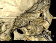 Computertomografie van de schedel