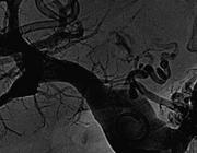 Transjugulaire intrahepatische portosystemische shunt