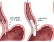 Achalasie en perorale endoscopische myotomie (POEM)