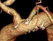 Mycotisch aneurysma van de coronairarterie
