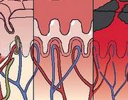 Opvang en behandeling van de patiënt met een ernstig verbrandingsletsel