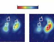 Elektrische impedantietomografie perioperatief en op de IC-unit