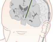 De ziekte van Parkinson