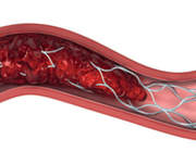 Intra-arteriële behandeling van het acute herseninfarct