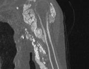 Erector spinae plane-blok bij volwassenen