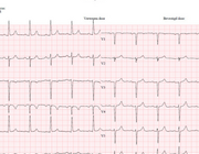 Acuut coronair syndroom na electieve laparoscopische cholecystectomie