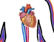 Extracorporale cardiopulmonale resuscitatie (ECPR)