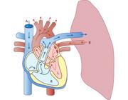 Preventie, detectie en behandeling van iatrogene gasembolieën