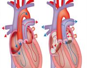 Preoperatieve evaluatie voor niet-cardiale chirurgie bij volwassenen met een aangeboren hartafwijking