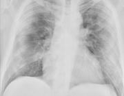 Thoracale beeldvorming bij COVID-19-infectie