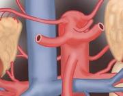 Niertransplantaties bij kinderen