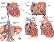 Coronaire CO2-embolie na pneumoperitoneum