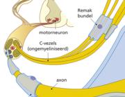 Locoregionale anesthesie bij diabetische polyneuropathie