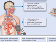 Perioperatieve ischemische conditionering